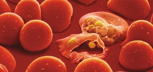 Red blood cells infected by malaria